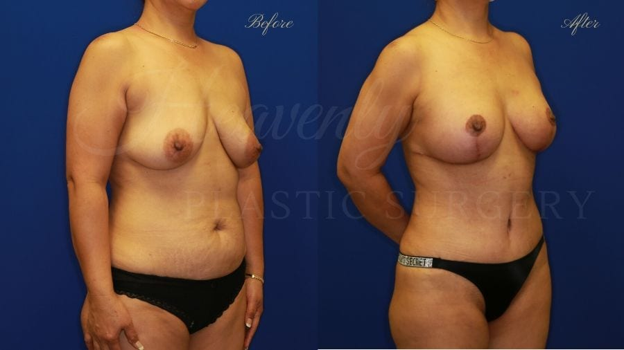 Mommy Makeover - Breast Augmentation, Breast Lift, Tummy Tuck, Liposuction