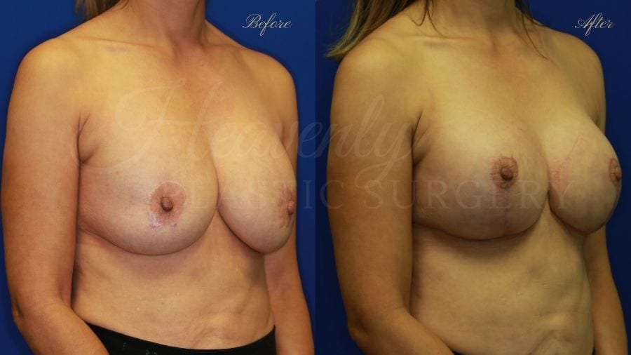 Breast Implant Exchange and Lift - 285cc SRX Silicone under the muscle with a Wise-pattern mastopexy (anchor scar)