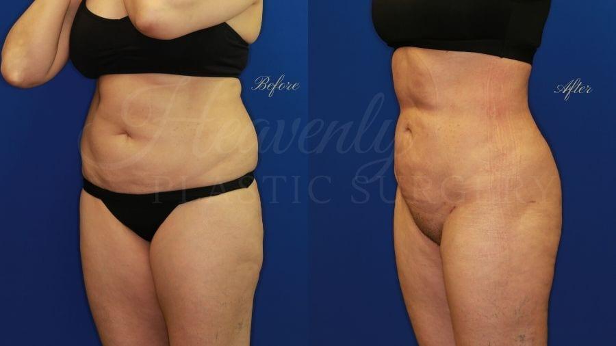 Plastic surgery, plastic surgeon, liposuction abdomen flanks thighs back