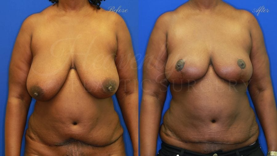 Plastic surgery, plastic surgeon, mommy Makeover, Breast reduction, reduction mammaplasty, Tummy Tuck, Abdominoplasty, Liposuction, Breast Lift, Mastopexy. before and after
