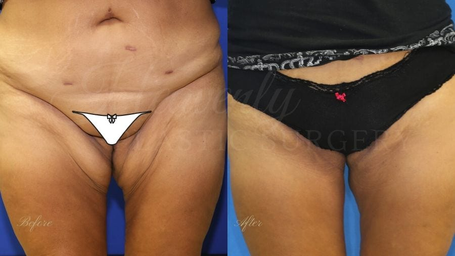Plastic surgery, plastic surgeon, before and after thigh lift, thigh lift, thighplasty
