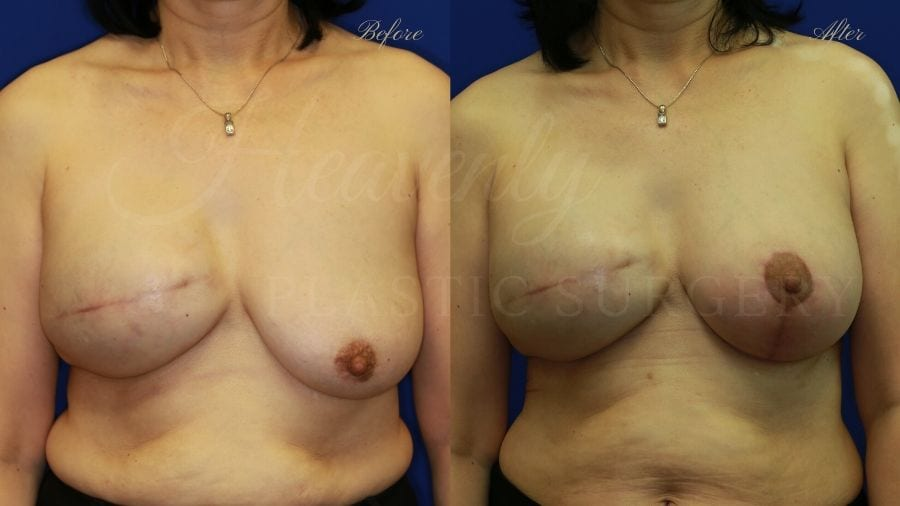 Breast reconstruction, mastopexy-augmentation, breast cancer, breast implants, breast lift