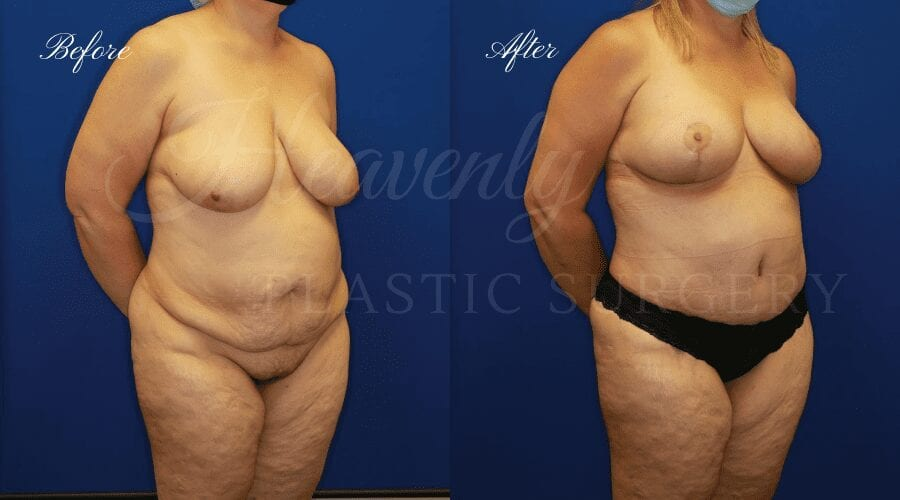 Plastic Surgery, Plastic Surgeon, Breast Lift, Mastopexy, Tummy Tuck, Excess Skin, Skin, Fat, Arm Lift, Bat Wings, Mommy Makeover
