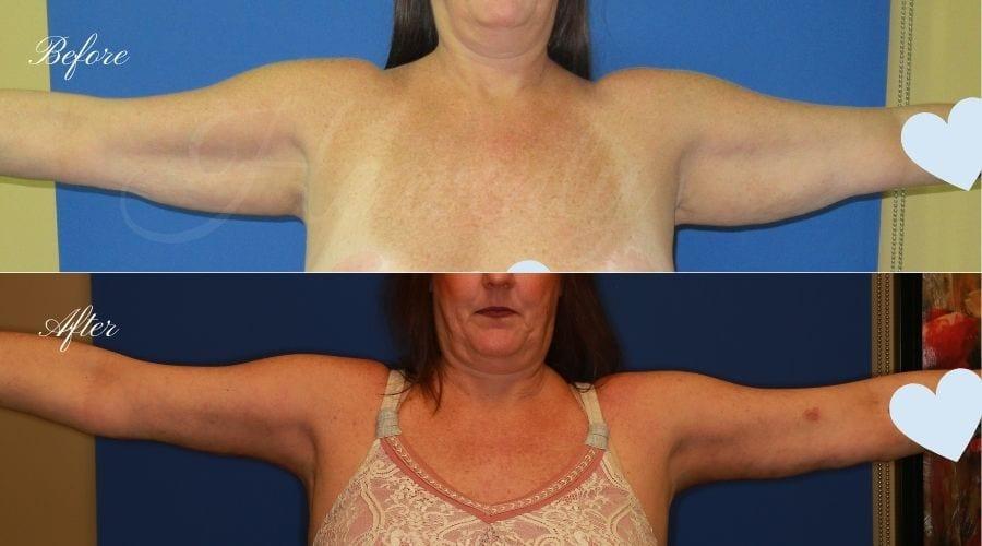 Plastic Surgery, plastic surgeon, arm lift, brachioplasty