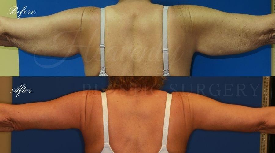 Arm lift, Brachioplasty, plastic surgery, plastic surgeon, massive weight loss