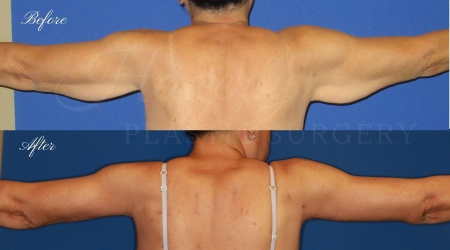 before and after image of a patient in her 50's who had an arm lift / brachioplasty performed by arm lift expert and plastic surgeon Dr. David Nguyen