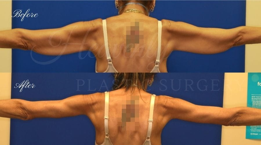 Plastic Surgery, Plastic Surgeon, Tummy Tuck, Arm Lift, Breast Lift, Liposuction