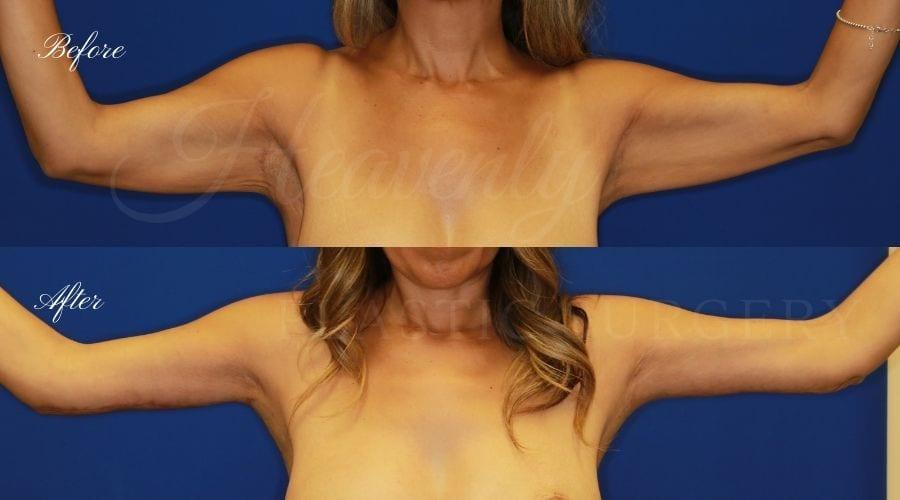 Plastic Surgery, plastic surgeon, arm lift, brachioplasty, back lift, upper body lift