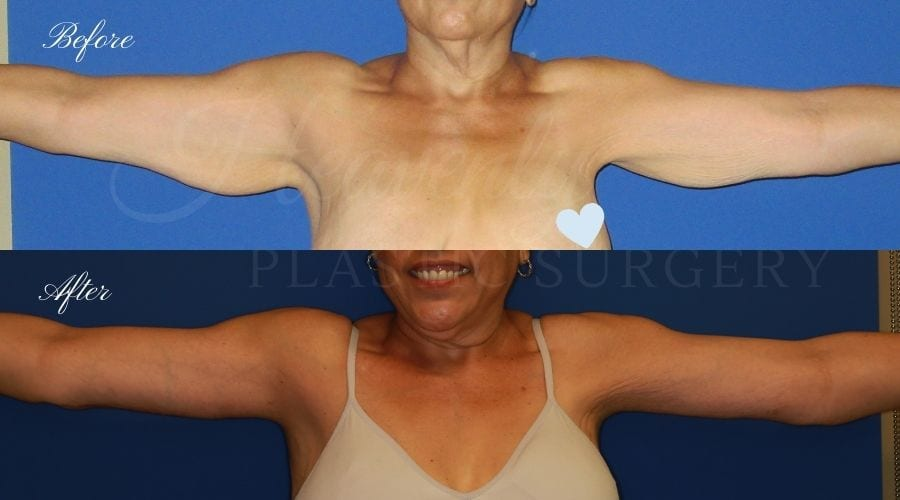 before and after image of a patient in her 50's who had an arm lift / brachioplasty performed by arm lift expert and plastic surgeon Dr. David Nguyen (front view)
