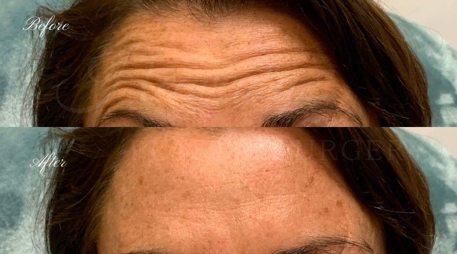 plastic surgery, plastic surgeon, botox, liquid facelift, forehead, forehead wrinkles, forehead lines, forehead lines, crows feet, fine lines, wrinkles, glabella, brows, jeuveau