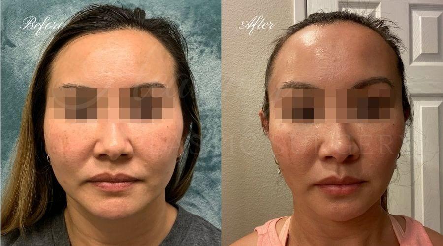 plastic surgery, plastic surgeon, botox, liquid facelift, masseters, masseter botox, jaw botox, masseter muscles