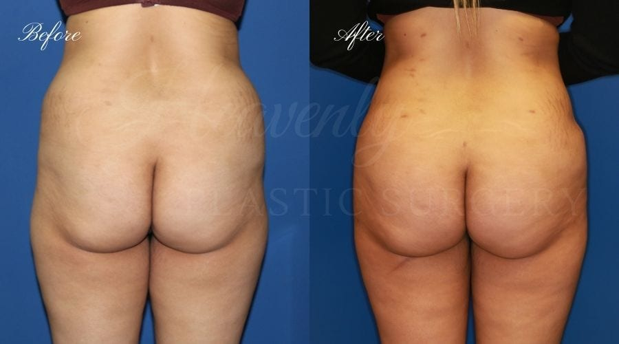 Plastic Surgery, plastic surgeon, lilpectomy, butt, bubble butt, fat grafting