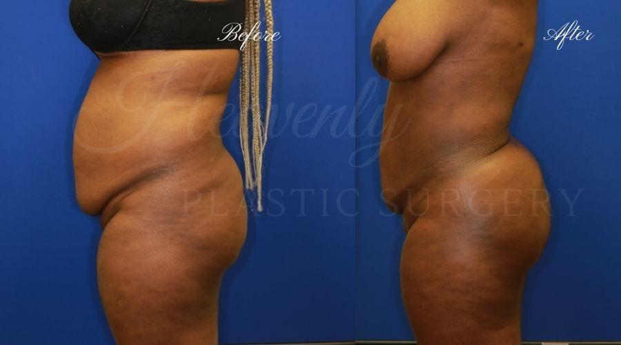 Plastic Surgery, plastic surgeon, lilpectomy, butt, bubble butt, fat grafting, peach butt, booty