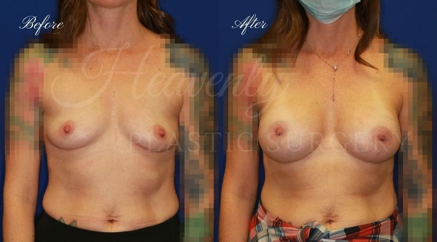 Breast Augmentation Before and After 325cc, plastic surgeon, plastic surgery, breast augmentation, enhanced breasts, boob job, implants, silicone implants
