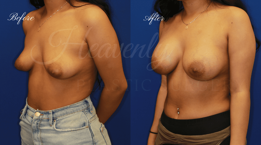 Breast Augmentation 375cc Before and After - Left Oblique, plastic surgeon, plastic surgery, breast augmentation, enhanced breasts, boob job, implants, silicone implants