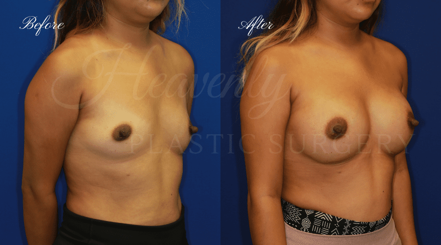 Breast Augmentation 385cc Before and After, Plastic Surgery, Plastic surgeon, breast augmentation, breast implants, augmentation mammaplasty