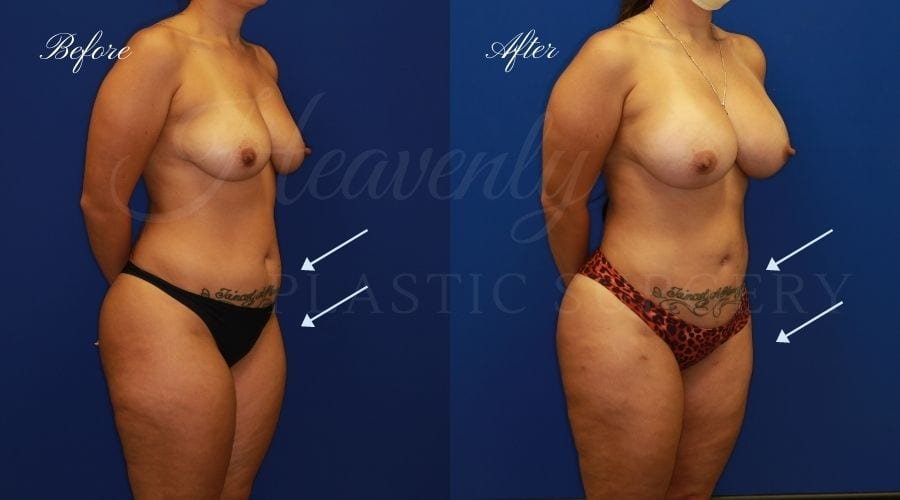 Breast Augmentation 385cc Before and After - Right Oblique, Plastic surgeon, plastic surgery, breast augmentation, breast implants, liposuction, thighs, abdomen, flanks