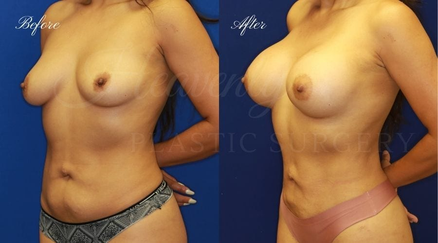 Plastic Surgery, Plastic Surgeon, Lipoetching, Breast augmentation, liposuction, breast aug