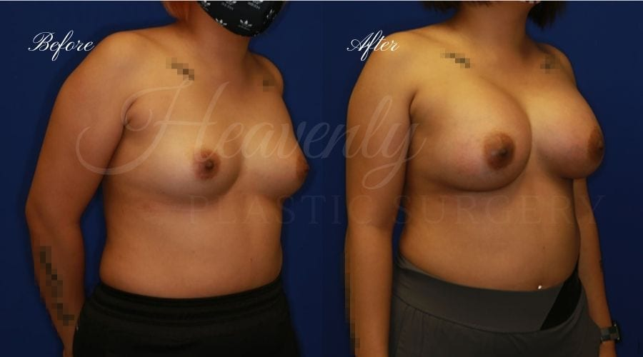 Breast Augmentation 420cc Before and After, plastic surgeon, plastic surgery, breast augmentation, enhanced breasts, boob job, implants, silicone implants
