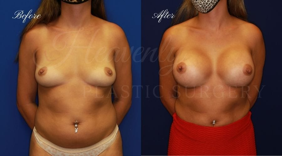 Breast Augmentation 445cc Before and After, plastic surgeon, plastic surgery, breast augmentation, enhanced breasts, boob job, implants, silicone implants