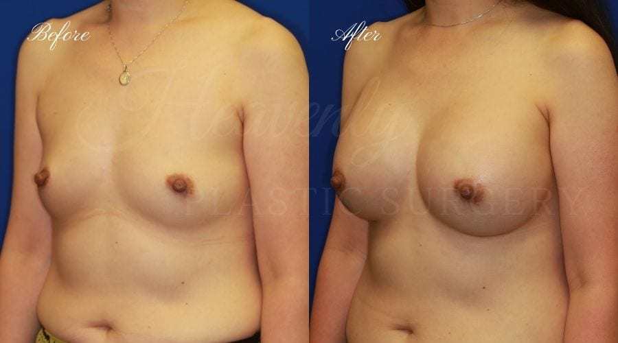 Plastic Surgery, Plastic surgeon, breast augmentation, breast implants, augmentation mammaplasty, 470cc implant, natrelle