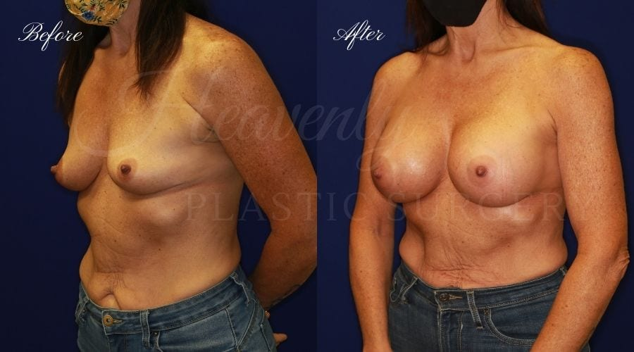 Breast Augmentation 505cc Before and After
