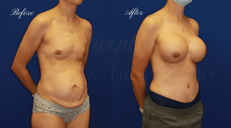 Breast Augmentation 545cc Before and After - Right Oblique JAAN