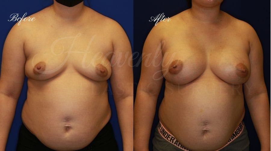 Breast Augmentation 605cc Before and After, plastic surgeon, plastic surgery, breast augmentation, enhanced breasts, boob job, implants, silicone implants