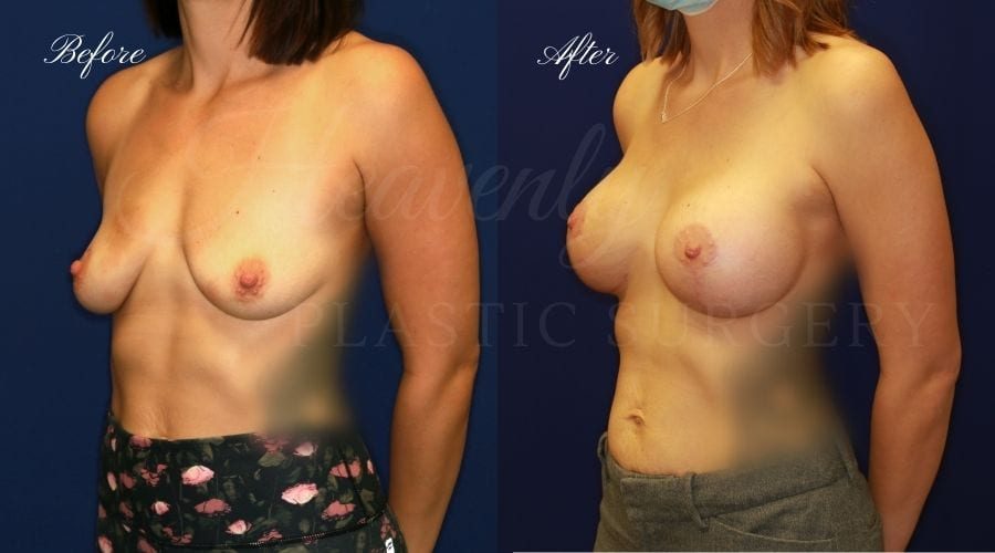 Breast Lift with Implants (Mastopexy-Augmentation) Before and After, Heavenly Plastic Surgery, Plastic Surgery, Plastic Surgeon, Breast Surgery, Breast Lift, Breast Lift with Implants, Breast Implants
