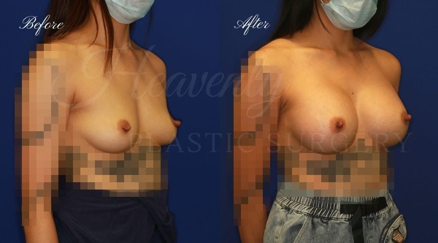 plastic surgeon, plastic surgery, breast augmentation, enhanced breasts, boob job, implants, silicone implants