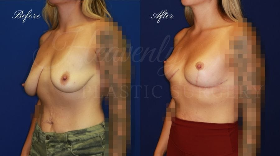Plastic Surgery, Plastic Surgeon, Breast Lift, Mastopexy, Donut Scar, Breast Lift Before and After, Mastopexy Before and After