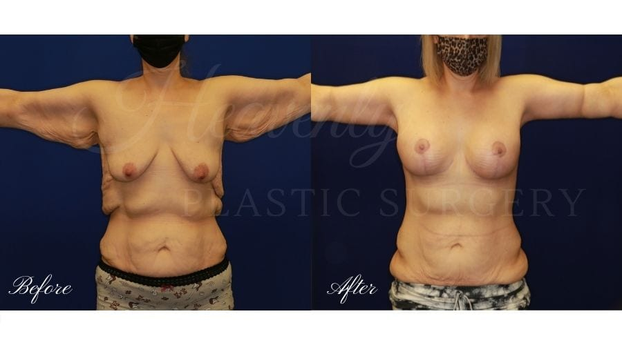 Breast Lift with Implants (Mastopexy-Augmentation) + Back Lift Before and After, Back Lift, Back Lift Surgery, Reverse Tummy Tuck, Weight-loss Surgery, Weight Loss Surgery, Arm Lift, Brachioplasty, Breast Lift, Mastopexy, Reverse Tummy Tuck Surgery, Upper Body Lift, Upper Body Surgery, Upper Body Lift Surgery, Upper Body Lift Orange County, Back Lift Orange County, Arm LIft Orange County, Arm Lift Surgeon, Weight-loss Surgeon, Weight Loss Surgeon, Weight Loss Surgery Orange County, Weight Loss Surgery Before and After, Weight-Loss Surgery Before and After, Transformation