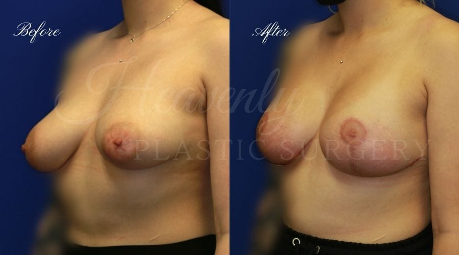 Breast Lift with Implants (Mastopexy-Augmentation) Before and After, Plastic Surgery, Plastic Surgeon, Breast Lift, Mastopexy, Mastopexy Augmentation, Mastopexy-augmentation, breast lift with implants