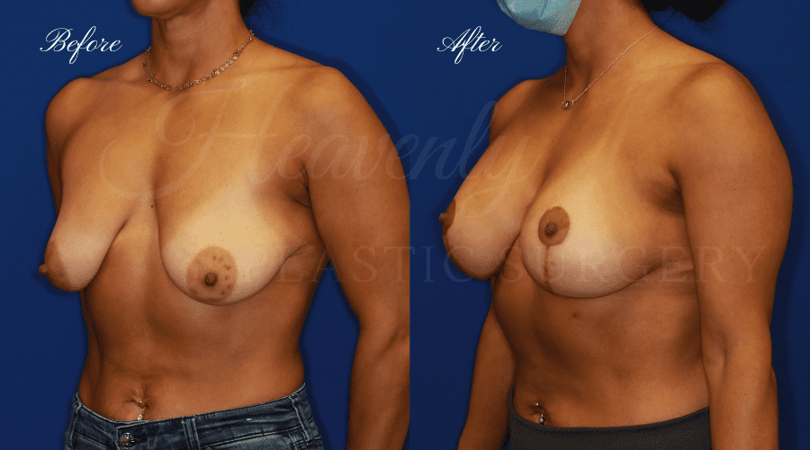 Mastopexy Augmentation (Breast Implants with Lift) - 310cc SRM Silicone breast implants with Wise-pattern breast lift (Anchor scar), plastic surgery