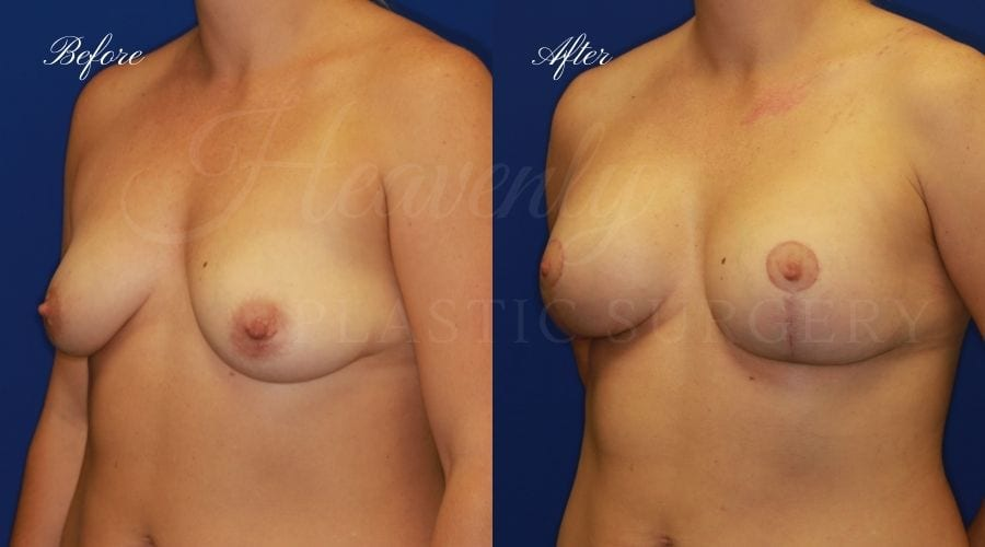 Breast Lift with Implants (Mastopexy-Augmentation) Before and After, Breast lift with implants orange county, plastic surgery before and after, plastic surgery orange county, breast surgery orange county, boob job orange county, boob job california