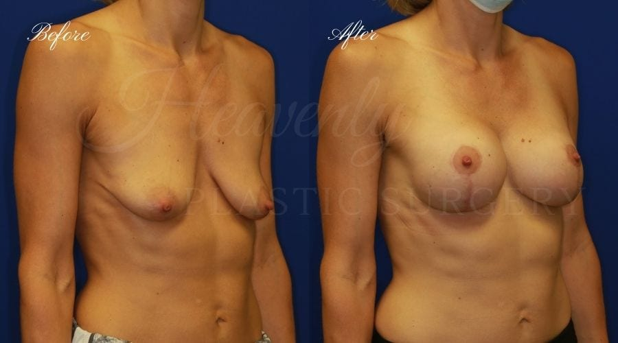 Breast Lift with Implants Before and After, Mastopexy Augmentation (Breast Implants with Lift) - 310cc SRM Silicone breast implants with Wise-pattern breast lift (Anchor scar), plastic surgery
