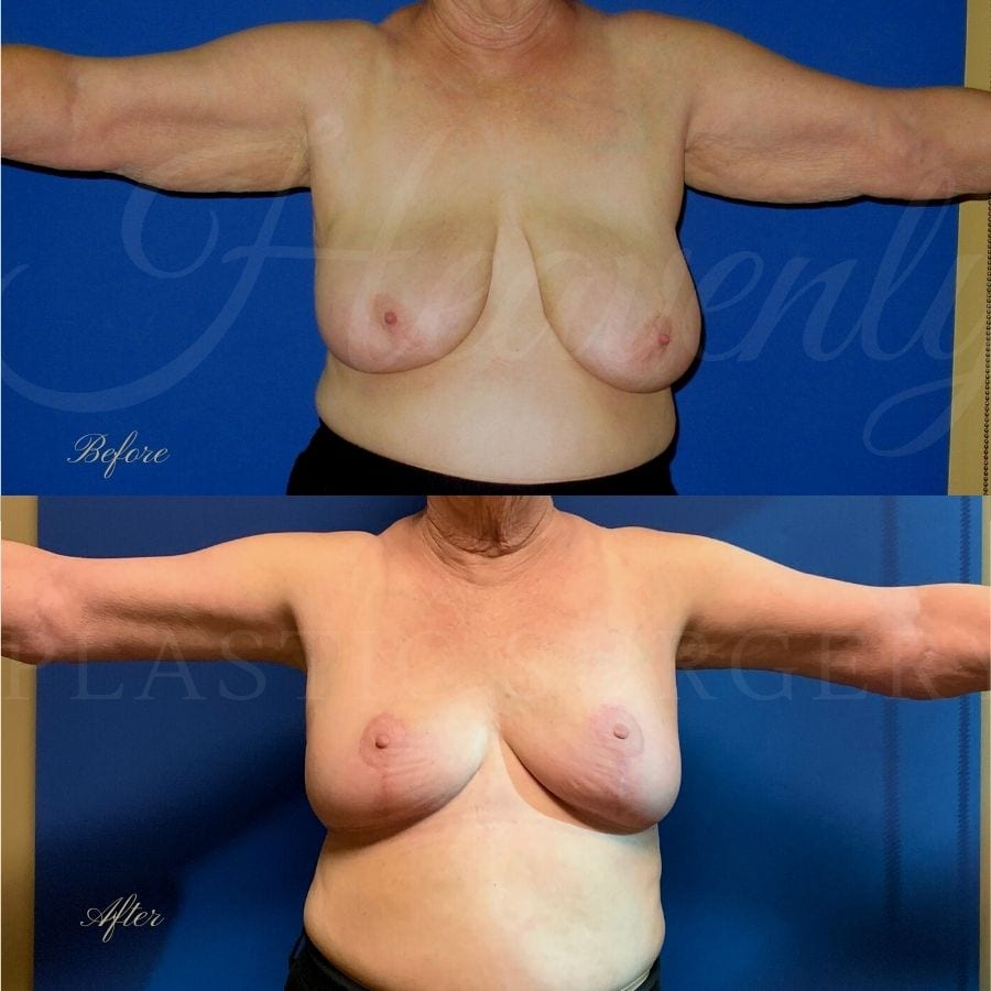 Breast Reduction + Arm Lift Before and After, Plastic surgery, plastic surgeon, arm lift, breast lift, breast reduction, brachioplasty