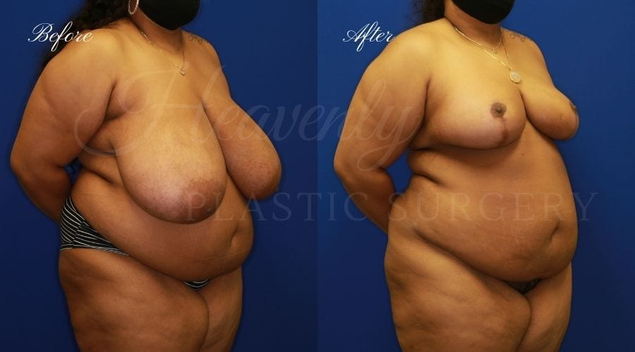 Breast Reduction Before and After, surgery, plastic surgeon, breast reduction, breast lift, reduction mammaplasty, mastopexy, before and after, mastopexy