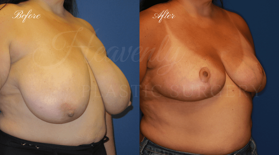 Breast Reduction Before and After, Plastic surgery, plastic surgeon, breast reduction, breast lift, reduction mammaplasty, mastopexy, before and after, mastopexy