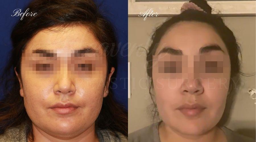 Buccal Fat Pad Removal, Buccal Fat Pad Removal Surgery, Cheekbone surgery, Cheek Plastic Surgery, Cheekbone Plastic Surgery, Cheek Surgery, Cheek Plastic Surgery, Contour