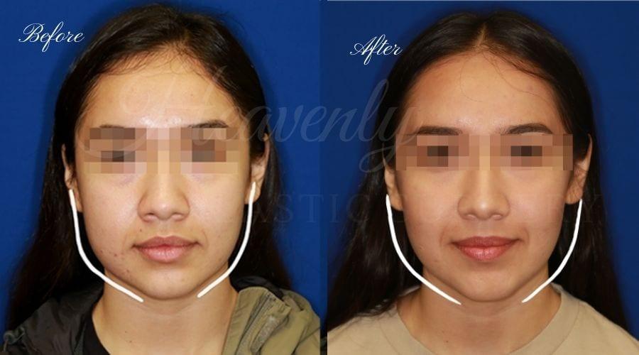 Plastic Surgeon, Plastic Surgery, Heavenly Plastic Surgery, Buccal Fat Pad Removal, Contour, Face Surgery, Millenneal Makeover, Cheek Surgery, Cheekbone Surgery, Cheekbones