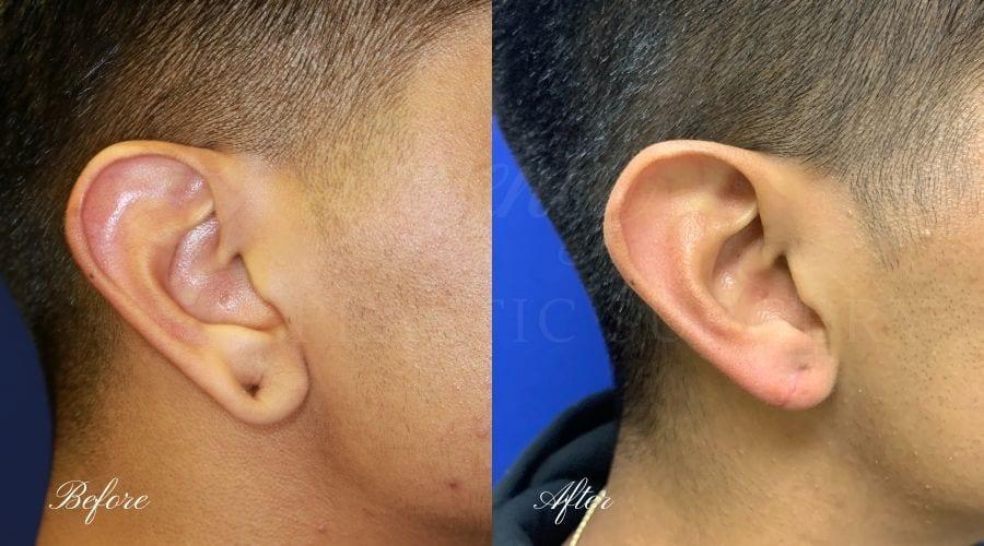 Plastic surgery, plastic surgeon, earlobe repair, before and after, earlobe surgery, closed earlobe surgery, close earlobe, surgery to close earlobe