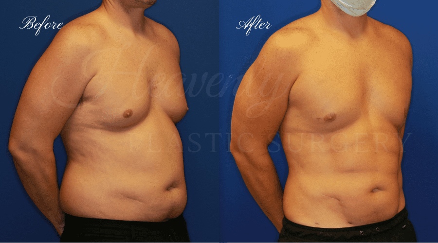 Plastic surgery, plastic surgeon, gynecomastia excision, man boobs, lipoetching, abs, gynecomastia excision