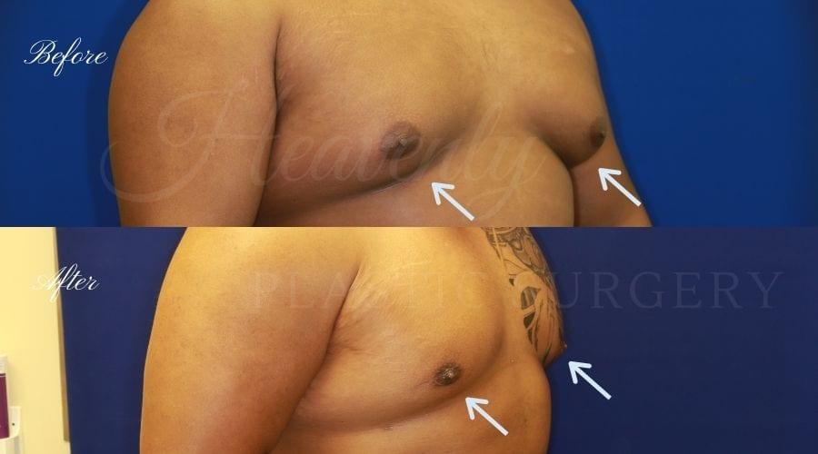Plastic surgery, plastic surgeon, gynecomastia excision, man boobs