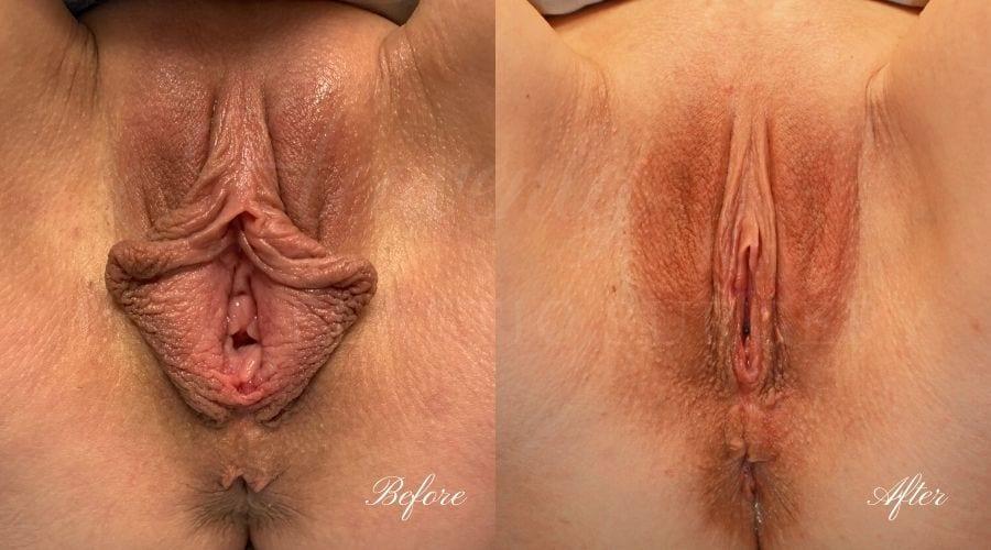 Labiaplasty (Labia Minora + Majora) Before and After, Labiaplasty, vaginal surgery, vaginal rejuvenation, vaginal reconstruction