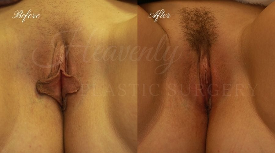 Labiaplasty, vaginal surgery, vaginal rejuvenation, vaginal reconstruction, labia minora