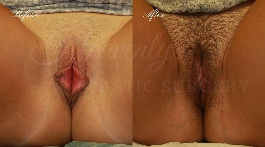 Labiaplasty (Labia Minora + Labia Majora) Before and After, Labiaplasty, vaginal surgery, vaginal rejuvenation, vaginal reconstruction, labia majora, labia minora