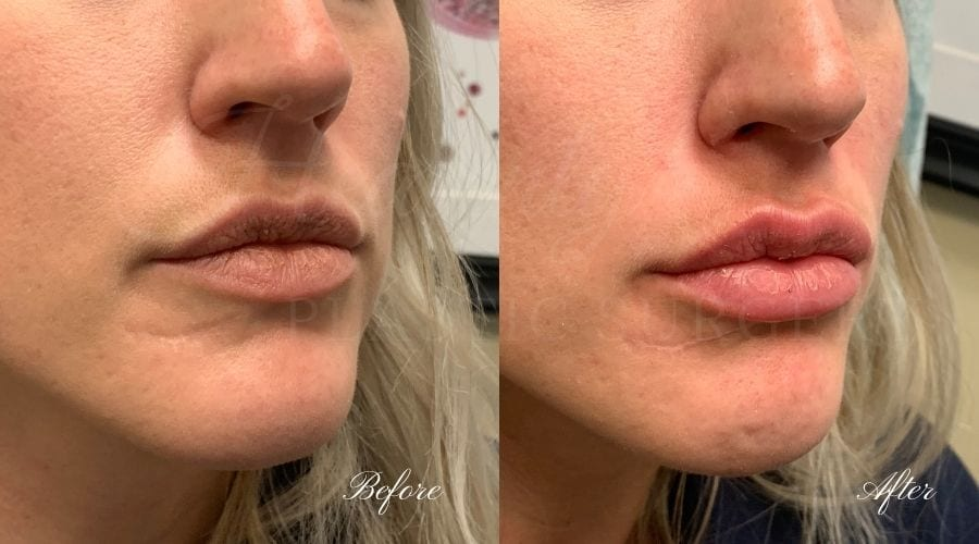 Lip filler, lip injection, juvederm, volbella, bigger lips, more lip volume, Versa, Revanesse Versa