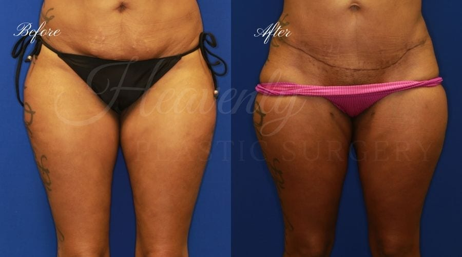 Plastic Surgery, Plastic Surgeon, Liposuction, liposuction before and after, thigh liposuction