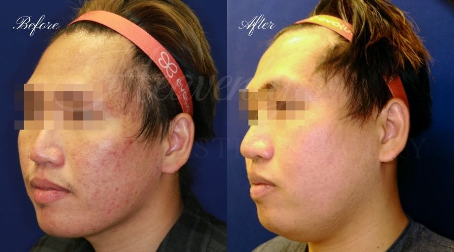 Microneedling, Microneedling results, microneedling before and after, microdermabrasion, hyperpigmentation, skin texture procedure, skincare, facial, skinpen